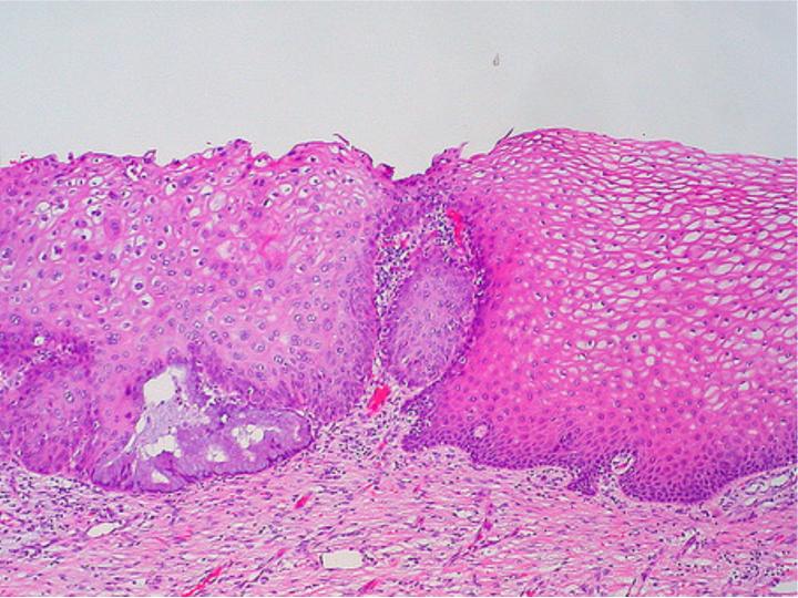 """Bilden visar ett snitt från en livmoderhals. Till höger ses normal vävnad och till vänster i bilden ser man att cellerna ser annorlunda ut, är olika stora och har större cellkärnor. Kanske ett förstadium till livmoderhalscancer? I vilket fall som helst förstår ni nu vad jag menar med """"ett rosa blus"""". Bild ifrån: histologyatlas.wisc.edu"""